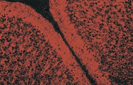 TSA staining of mouse brain tissue
