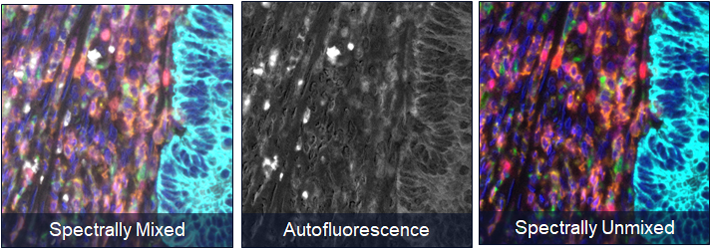 Image of spectrally unmixed tissue compared to autofluorescence present on tissue and spectrally unmixed tissue.