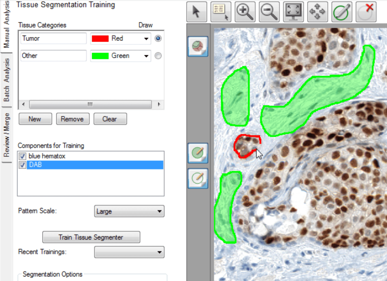 Tissue segmentation training in inForm