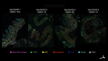Tissue images showing progression of gut GvHD
